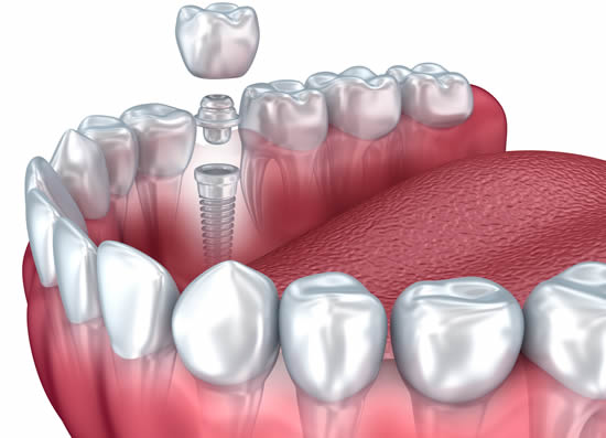 How Dental Crowns Are Used For Tooth Restoration
